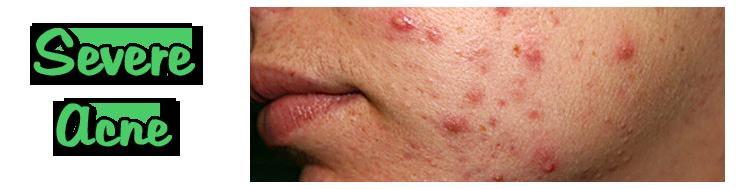 slide_acne