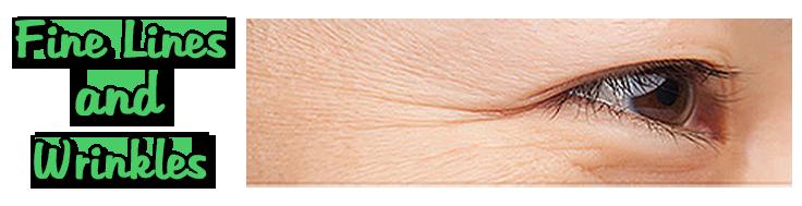slide_wrinkles
